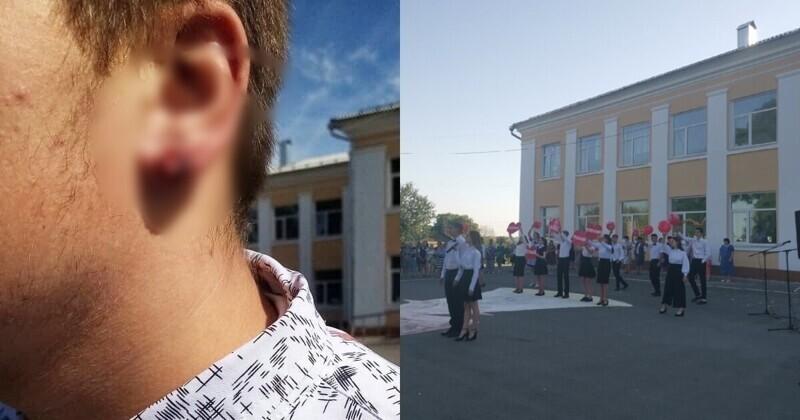 Директор школы в Курской области порвал ученику ухо, пытаясь снять серьгу